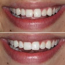 Dental Bonding Near Me Dental Cosmetics Cosmetic Bonding Dentist