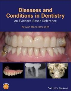 Textbook of complete denture prosthodontics pdf prosthodontics diseases and conditions in dentistry an evidence based reference 1st edition fandeluxe Gallery