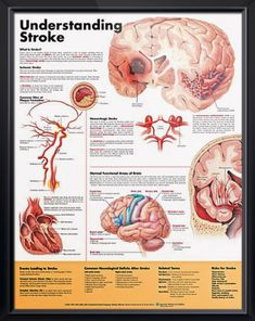 Understanding Stroke anatomy poster explains and illustrates stroke, including the two main types: ischemic and hemorrhagic. Cardiology for doctors and nurses. <3
