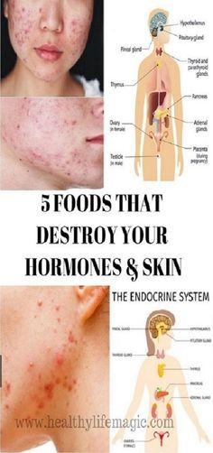 5 Foods That Destroy Your Hormones Skin #5FoodsThatDestroyYourHormonesSkin