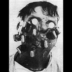 Mask used for radium treatment of cancer of the head and neck. These masks were used in the 1920's and were custom made for each patient.