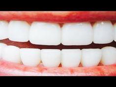 TEST EDİLDİ ; Sadece 2 Dakika'da Diş Beyazlatan Doğal Yöntem ! - YouTube