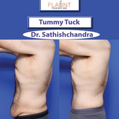 cost remove excess skin after weight loss