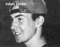 Adam Levine acne in his teens