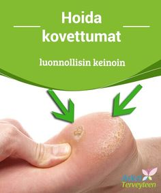 This article discusses some substances that may help you treat calluses naturally. Remember that proper footwear and rest are needed to prevent them. Beauty Care, Diy Beauty, Bra Hacks, Health Heal, Natural Home Remedies, Asthma, Organic Beauty, Health Remedies, Legs