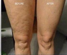 Firming Cream, I Site, Anti Aging Skin Care, San Diego, Beauty, Products, Beleza, Cosmetology