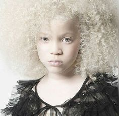 Albinism is a disorder characterized by a complete or partial lack of pigment in the skin, eyes, and hair. People with albinism look like gorgeous girl model Ava Clarke whom you see in the picture. Stunning Eyes, Stunningly Beautiful, Pretty People, Beautiful People, Beautiful Children, Beautiful Women, Albino Girl, Long Thick Eyelashes, White Lips