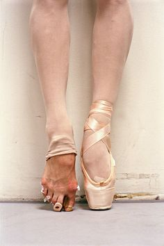 What a classically trained ballerina's foot looks like after a performance. - Imgur