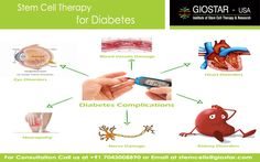#Stem #Cell #Treatment for #Diabetes  Diabetes is the disease affecting the metabolism of glucose to a great extent. The glucose is required by the cells for energy production and normal functioning. This glucose comes in the blood from the food we eat and carried to the cellular level by an important hormone known as the insulin.  Know more : http://www.giostar.com/Therapy/diabetes-type-2/  Email: stemcells@giostar.com