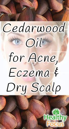 Cedarwood Essential Oil uses include: ADHD, Acne, Eczema, Hair Growth, Anti-Inflammatory Asthma, Sleep, Wounds, Pain Relief and Anti-Cancer potential,