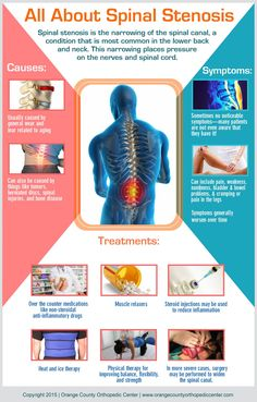All About Spinal Stenosis lower back pain scoliosis Cervical Spinal Stenosis, Spinal Stenosis Surgery, Spinal Stenosis Treatment, Tennis Arm, Spinal Canal, Spondylolisthesis, Hernia, Back Surgery, Scoliosis Exercises