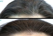 Grease your hair with these natural creams to get rid of gray hair - WomenIdeas.net