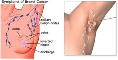 Detox your armpits and prevent breast cancer!