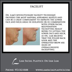 Dr. Lam's revolutionary facelift technique provides the most natural appearing results and can be a great complement to improve the lower face and neck areas in isolation or in combination with other facial rejuvenation procedures. All face-lift procedures are performed by Dr Sam Lam in Dallas, Texas.  @LamFacialPlastics #LamFacialPlastics #DrSamLam #PlasticSurgery #DallasPlasticSurgeon #Facelift #FaceLiftSurgery