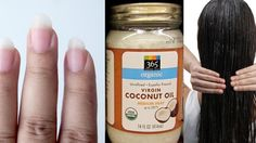 In this article, we discuss 20+ everyday applications of coconut oil. To concisely explain these numerous benefits, we've categorized them into five groups. With so much to cover, let's get going! 20+ AMAZING WAYS TO USE COCONUT OIL BEAUTY USES – Anti-dermatitis solution. Regular use of coconut oil has been shown to improve a condition called atopic dermatitis …