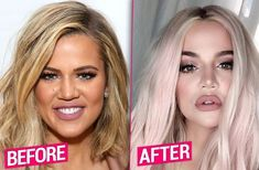 Plastic Surgery Photos, Celebrity Plastic Surgery, Face Plastic Surgery, Bad Plastic Surgeries, Kardashians Before And After, Khloe Kardashian Plastic Surgery, Khloe Kardashian Nails, Facelift Without Surgery, Boutique Hair Bows