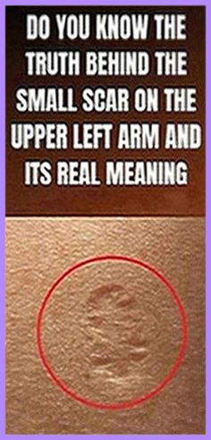 Do You Know The Truth Behind The Small Scar On The Upper Left Arm And Its Real Meaning Herbal Remedies, Health Remedies, Home Remedies, Natural Remedies, Natural Life, Natural Living, Natural Healing, Get Healthy, Healthy Tips