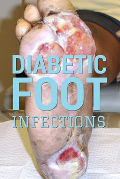 For effective diabetic wound management, clinicians must know the risk factors for foot infections and be able to diagnose them  as soon as possible. Get the lowdown here and learn more about diabetic foot ulcers with a FREE webinar.