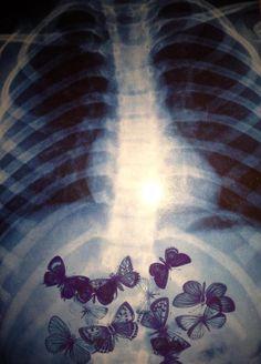 J'ai des papillons dans le ventre....