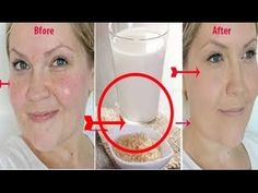She washes her face with boiled rice water twice a week for a month Theend result ? Unbelievable - YouTube