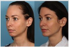 Sidle, utilizes the latest techniques in his surgery of forehead reduction and hairline lowering for females. Forehead Reduction Surgery, High Forehead, How To Cut Bangs, Brow Lift, Going Bald, Hair Density
