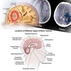 Neurološke bolesti - Neurološke smetnje. Multipla skleroza, parkinsonova bolest, alchajmer, demencija, migrena, tumor mozga, epilepsija, autizam...