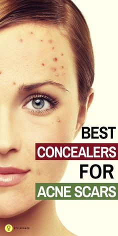 We all suffer from acne at some point of time, especially if you have oily skin. Acne leaves scars behind which makes you look terrible. But it is important to choose the right concealer to hide imperfections flawlessly. Today I am going to list for you the top 10 concealers which are best for hiding acne scars. Read on. #acne Acne Skin, Acne Scars, Oily Skin, Acne Blemishes, Skin Toner, Home Remedies For Acne, Acne Remedies, Natural Remedies, Herbal Remedies