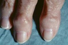 arthritic bumps on hands - Google Search