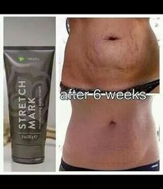 Want help with your stretch marks? This is it! Amazing stuff!  Ashleyscrazywrapthing.com