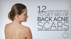 12 Home Remedies To Get Rid Of Back Acne Scars. There are many looking to learn how to get rid of acne scars...