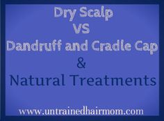 Dry Scalp vs Dandruff or Cradle Cap and natural treatments for each