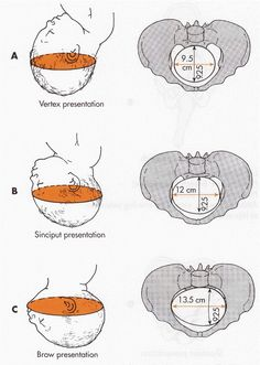 Head entering pelvis. Biparietal diameter is indicated with shading (9.25 cm). A, Suboccipitobregmatic diameter: complete flexion of head on chest so that smallest diameter enters. B, Occipitofrontal diameter: moderate extension (military attitude) so that large diameter enters. C, Occipitomental diameter: marked extension (deflection) so that largest diameter, which is too large to permit head to enter pelvis, is presenting.