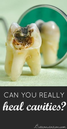Can you REALLY heal cavities Separating FACT from FICTION with answers from a holistic dentist Butter Nutrition Teeth Health, Healthy Teeth, Dental Health, Oral Health, Dental Care, Health Heal, Holistic Remedies, Health Remedies, Natural Remedies