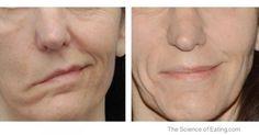 Facial Exercises For Stroke Patients. #health #stroke