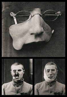 World War 1 soldier with and without his facial prostethic