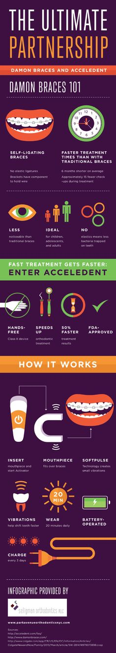 AcceleDent is a hands-free, Class II device designed to speed up orthodontic treatment. Choose AcceleDent and experience 50% faster treatment results! Learn more about the process by viewing this infographic from a top orthodontist in NYC.