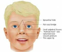 Cfc Syndrome Adult