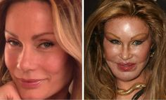 Jocelyn Wildenstein and Donatello Versace Surgery Gone Wrong