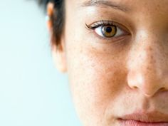 5 Simple Ways To Get Rid Of Brown Spots On Skin.  One of the very embarrassing skin problems that a lot of people face is of appearance of brown spots on the skin. The main reason behind this problem is the over secretion of melanin which causes skin pigmentation making brown spots on the skin. It is very important to cure the problem when it first occurs.  http://www.homeremedyfind.com/5-simple-ways-to-get-rid-of-brown-spots-on-skin/  #Sundicators #brownspots #skincare