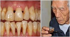 He cured himself of periodontal disease: Now he shares his experience and recipe with us! Periodontal disease is a disease of the teeth which damages . Bacon Nutrition, Lentil Nutrition Facts, Broccoli Nutrition, Nutrition Chart, Gum Health, Dental Health, Causes Of Bad Breath, Gum Disease Treatment, Dental
