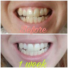 Ap 24, I Site, Anti Aging Skin Care, Teeth Whitening, Lips, Nu Skin, Beauty Products, Magic, Smile