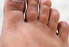 Foot fungus is an annoying fungal infection that can affect anyone. Most people who have foot fungus do not even bother to take a second glance at it due to the Toenail Fungus Laser Treatment, Toenail Fungus Remedies, Toe Exercises, Get Rid Of Bunions, Morton's Neuroma, Plantar Fasciitis Treatment, Fungal Nail Infection, Home Treatment, Look Alike
