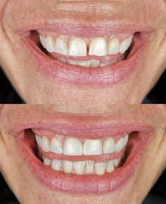 Another gap and chipped teeth conservatively and cosmetically improved with the Bioclear Method and Cosmetic Shaping! Cosmetic Dentistry, Dental, Teeth, Gap, Cosmetics, Tooth, Dentist Clinic, Dental Health