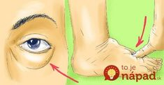 Vačky pod očami, opuchnuté a ťažké nohy alebo jednoducho pocit, že vaše telo je nafúknuté. Tieto pocity trápia mnohé ženy a to najmä v období pred alebo počas menštruácie. Pokiaľ však nejde o hormonálne zmeny,