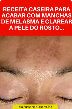 Skin Care Tips That Everyone Should Know Beauty Care, Beauty Hacks, Hair Beauty, Saw Horse Diy, Remover Manchas, Bella Beauty, Bare Face, Sagging Skin, Tips Belleza