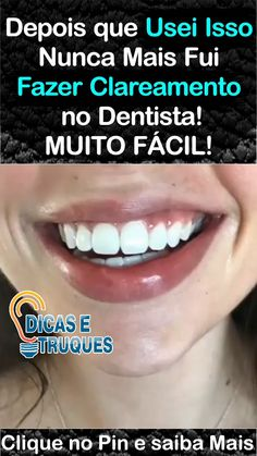 Depois que Usei Isso Nunca Mais Fui Fazer Clareamento no Dentista! The Ultimate Guide to Hautpflege Produkte The cookie settings. Permanent Facial Hair Removal, Back Hair Removal, Remove Unwanted Facial Hair, Acne Scar Removal, Hair Removal Cream, Unwanted Hair, How To Get Rid, How To Remove, Warts On Face