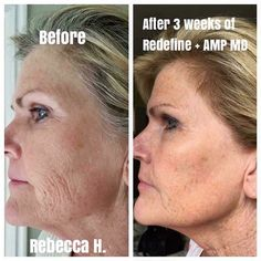 Only Three Weeks On Our New Amp Roller And Intensive