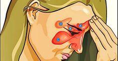 3 ótimas receitas caseiras para sinusite | Cura pela Natureza.com.br