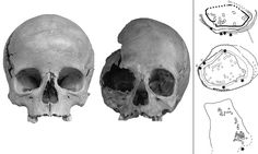 Bronze Age circles made from babies' skulls may have been offerings to 'lake gods' to prevent flooding | Skulls were found forming a protective rings around settlements near lakes in Switzerland and Germany | Archaeologists from the University of Basel, Switzerland said they were offered to local lake gods to protect their homes from flooding | The children were killed long before their remains were used as offerings | by SARAH GRIFFITHS PUBLISHED: 11 July 2014