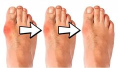 Bunions remedies